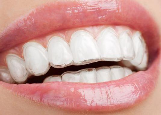 Як самому випрямити зуби?