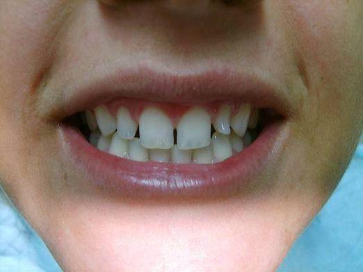 Як прибрати щілину між зубами?