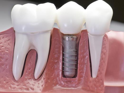 Як вставляють зуби?